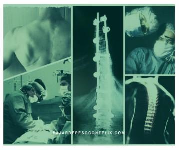 operacion-jose-vicente-felix-llopis