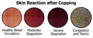 efecto-piel-ventosas-celulitis
